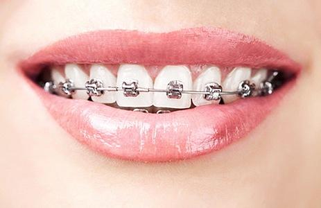 ortodoncja, aparat ortodontyczny