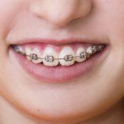 Prostowanie zębów i aparat ortodontyczny - Klinika Maria Kowalczyk